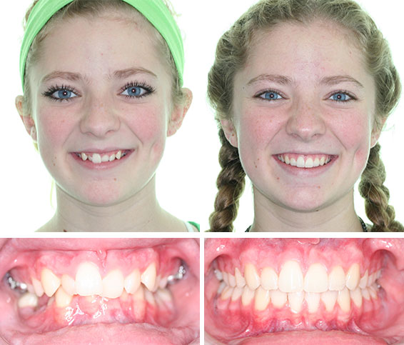 Before After Photos Corbridge Orthodontics Frisco Tx