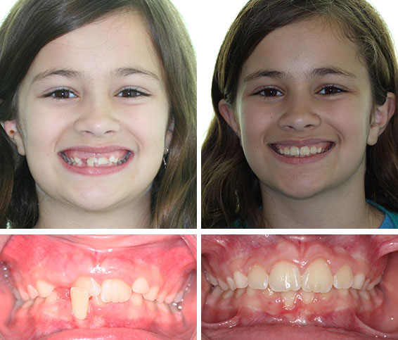 Before Amp After Photos Corbridge Orthodontics Frisco Tx